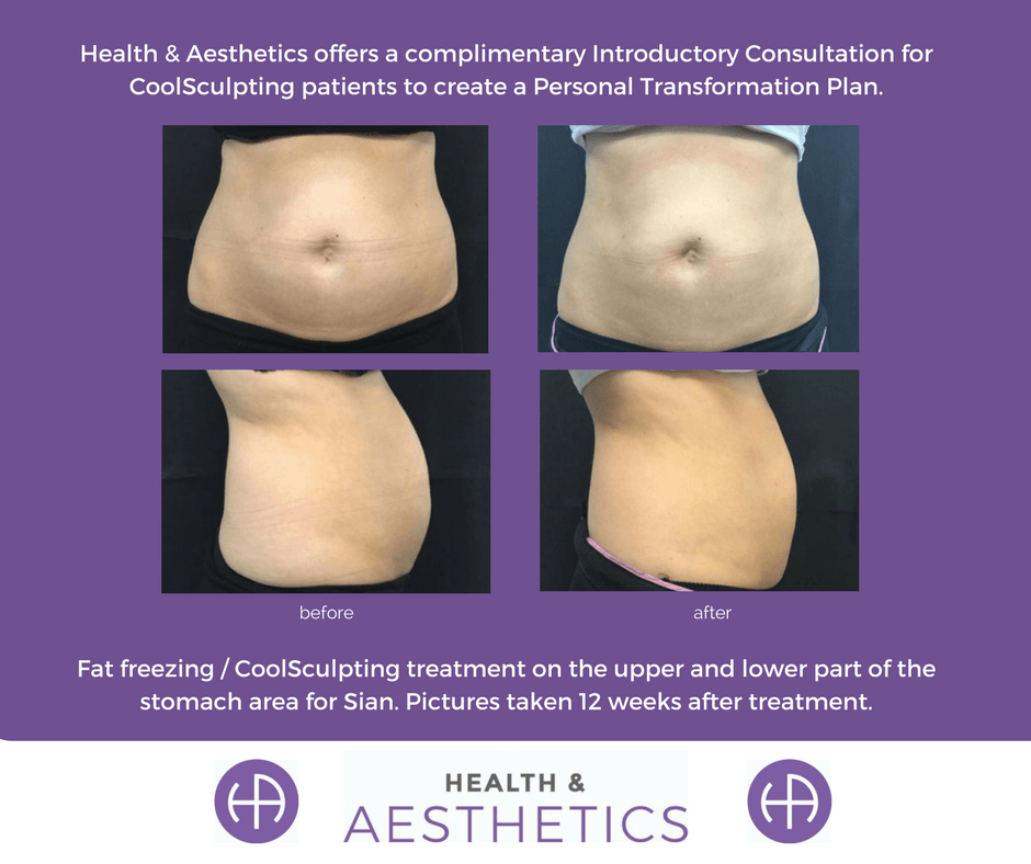 does coolsculpting work