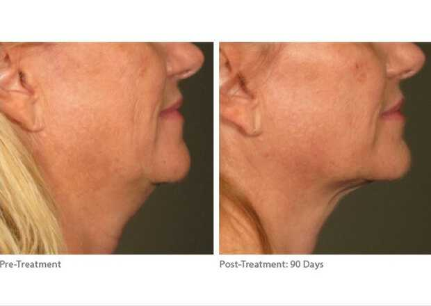 Ultherapy Facelift at health + aesthetics, Farnham, Surrey