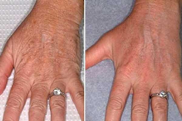 Hands Rejuvenation with laser at health + aesthetics, Farnham, Surrey