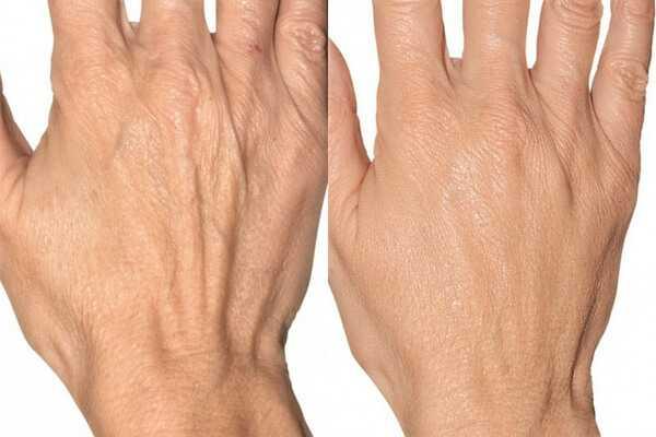 Hands rejuvenation with dermal fillers at health + aesthetics, Farnham, Surrey