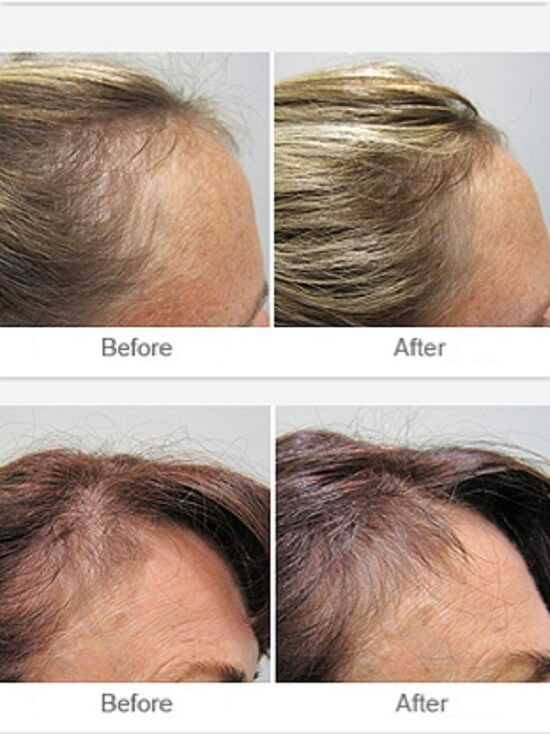 Before and After Images of thinning hair after treatment with Viviscal Professional at health + aesthetics, Farnham, Surrey