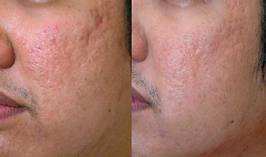 Before & After Acne Scar Treatment in Surrey 4