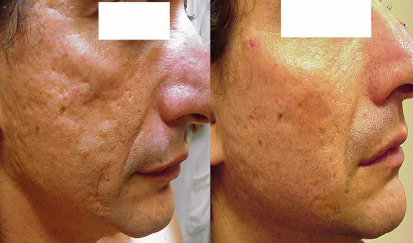 Clearskin Treatment In Surrey Effective Laser Acne Treatment