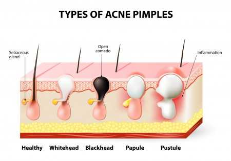 laser treatment for acne