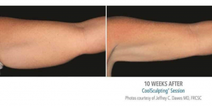 arms before and after