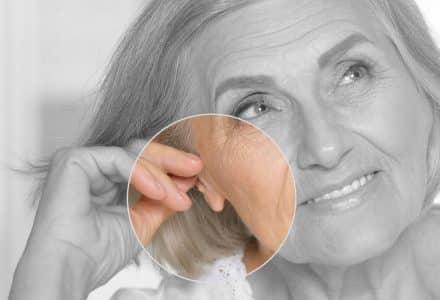 sagging earlobes