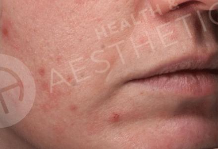 ZO Skin Health for Acne