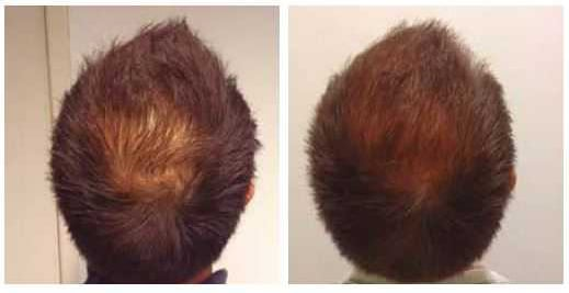 Before and after mesotherapy hair