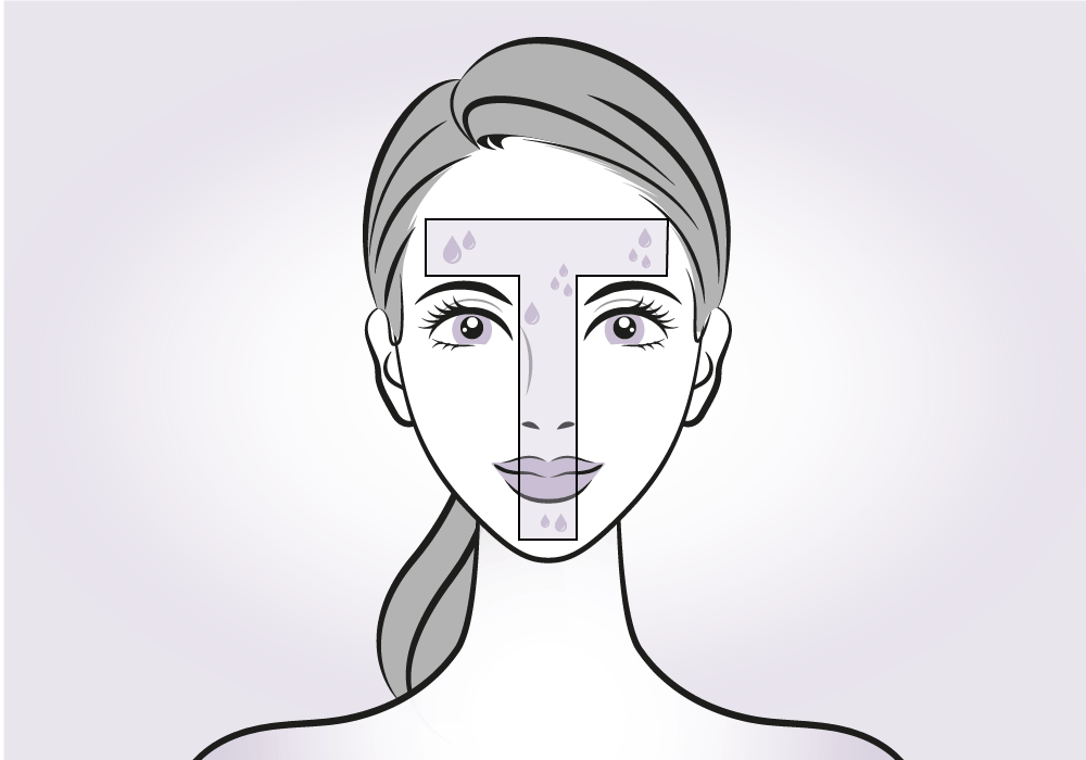 How Botox Stops Excessive Sweating & How It Can Help You