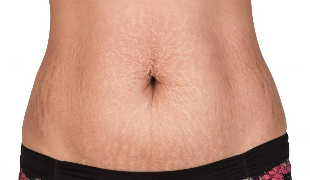 stretch marks on woman's torso