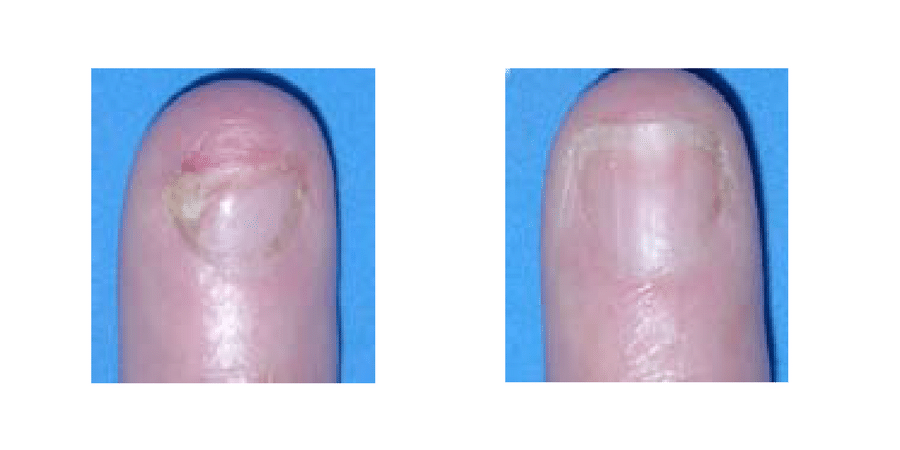 Fungal Nail Infection Treatment In Surrey Nd Yag Laser
