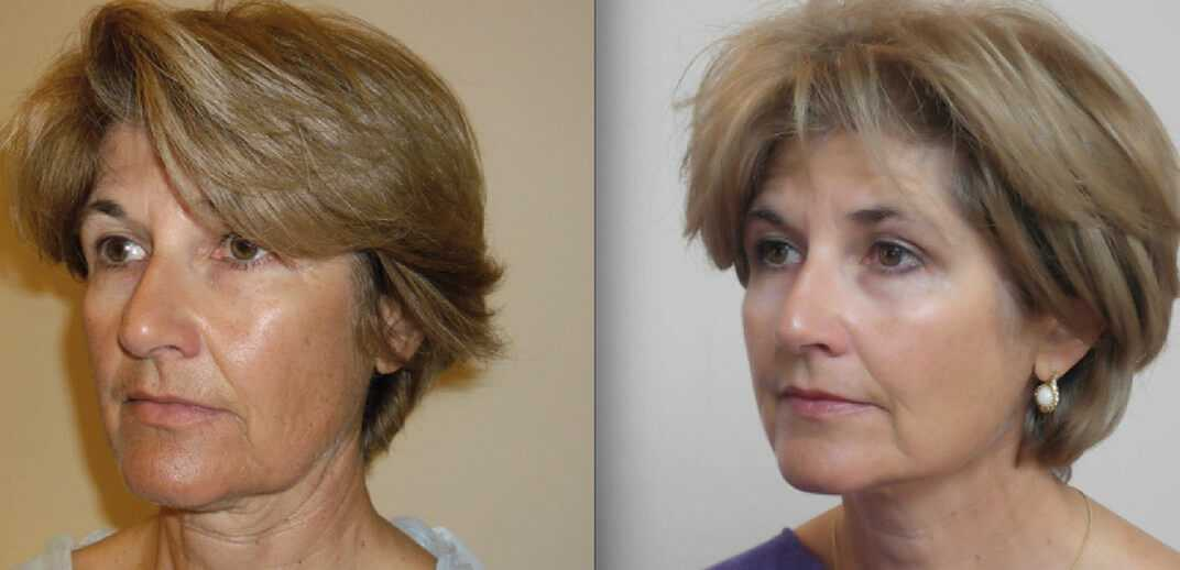 Before & After Thread Lift in Surrey 0