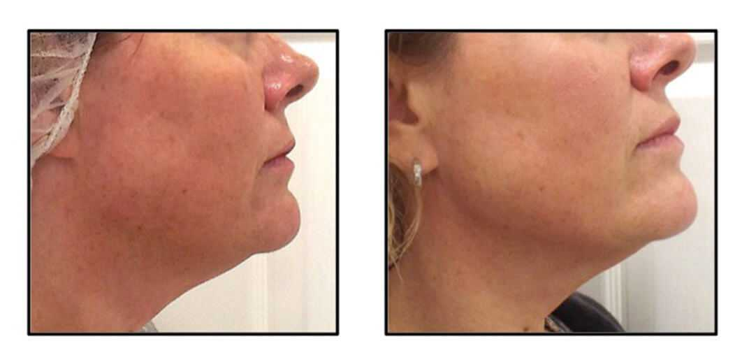 Thread Lift in Surrey | Silhouette Soft Thread Lift | Non-Surgical