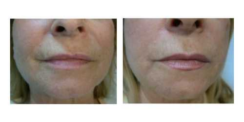 profilo before after health and aesthetics (6)
