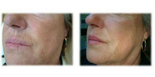 Profhilo in Surrey | Skin Booster Treatment for Your Skin
