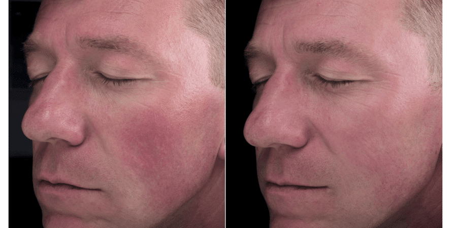 Before & After Flushing & Rosacea Treatment in Surrey 3