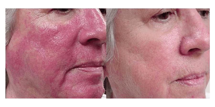 Rosacea Laser Treatment In Surrey Rhinophyma Amp Vascular