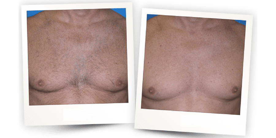 Before & After Laser Hair Removal in Surrey 0